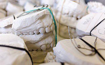 Gips - auch heute noch ein sehr beliebter Baustoff, der bei vielen Projekten zum Einsatz kommt. Neben seiner Eigenschaft als Baustoff kann Gips auch bei Zahnabdrücken eine sinnvolle Hilfe darstellen. Foto: Humusak (CCO-Lizenz) / pixabay.com